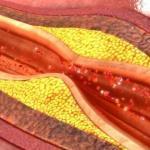 El colesterol: ¿que tipos hay, cómo te afecta y por qué deberías controlarlo?