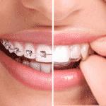 El éxito de la ortodoncia Invisalign como tratamiento para mejorar la sonrisa