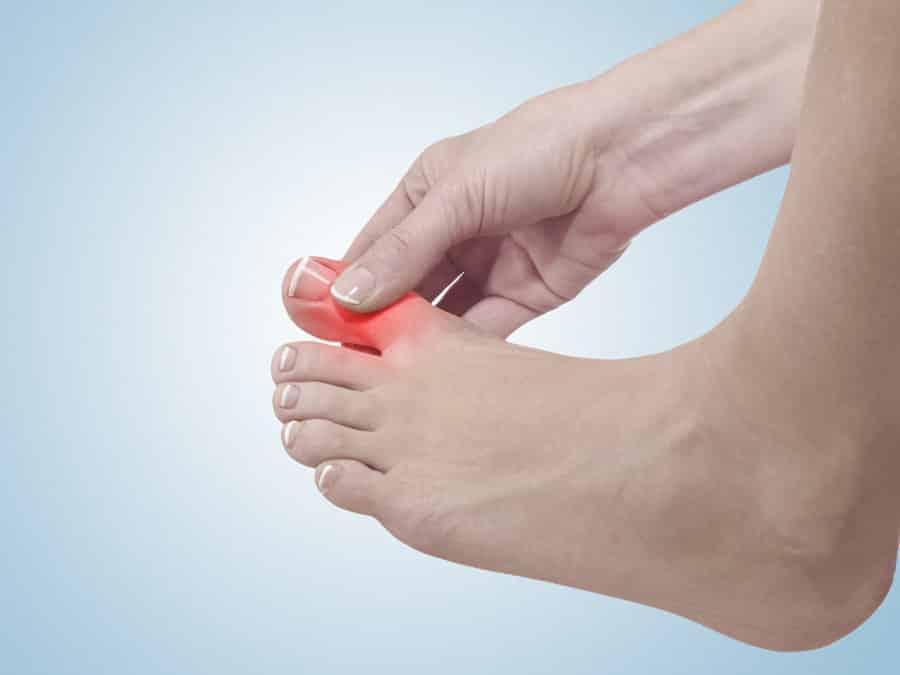 dedos de los pies dolor de uñas